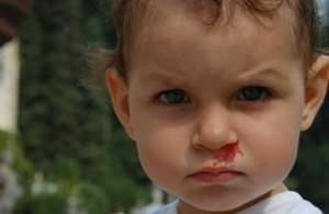 Кровотечение из носа у детей: причины частого кровотечения из носа у ребенка