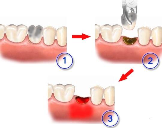 Запах изо рта после удаления зуба: что делать, советы врачей