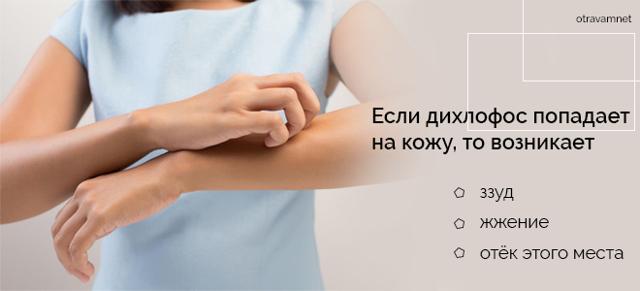 Отравление Дихлофосом: симптомы, лечение и первая помощь