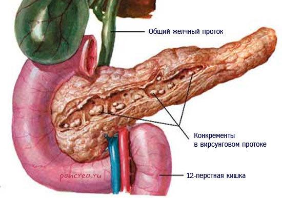 Калькулёзный панкреатит: причины, симптомы и лечение