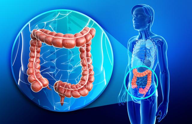Язва толстого кишечника: симптомы и лечение