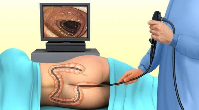 Трусы для колоноскопии: для чего нужны, как выбрать и использовать