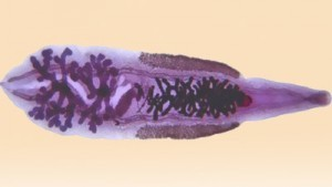 Диагностика описторхоза: анализ крови, расшифровка