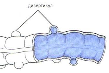 Дивертикул прямой кишки у человека: симптомы, лечение, статистика