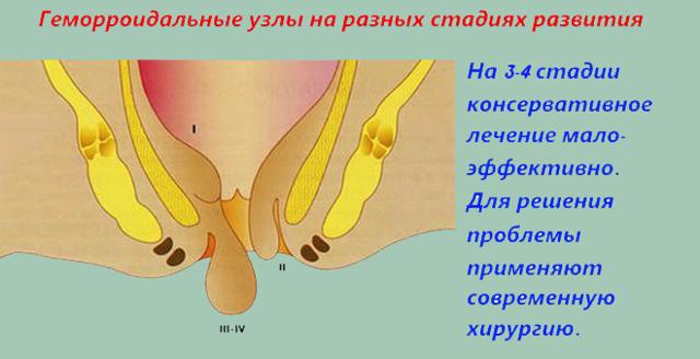 Мазь от геморроя Проктоседил: отзывы и инструкция по применению