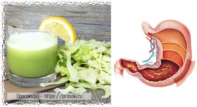 Капустный сок при гастрите: как правильно принимать для лечения желудка