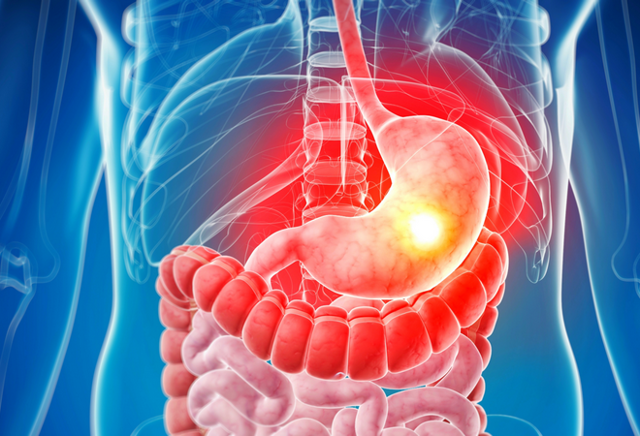 Диффузный атрофический гастрит: причины, симптомы и лечение