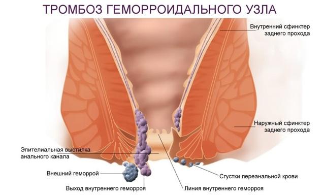 Схема лечения тромбоза геморроидального узла