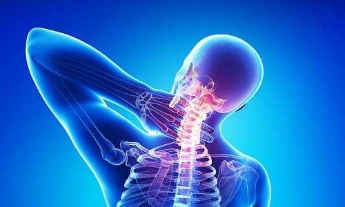 Дорзальная грыжа межпозвонкового диска: особенности лечения