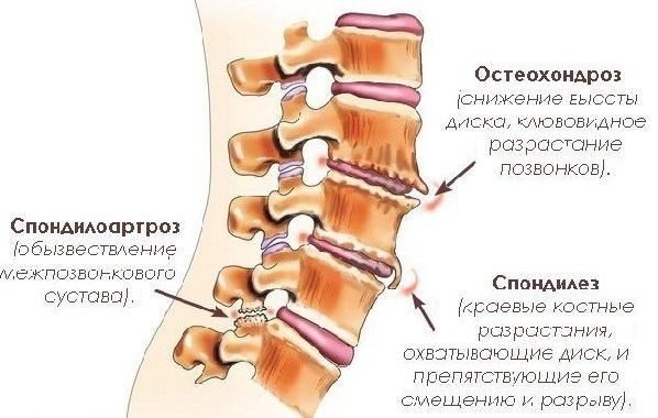 Спондилоартроз пояснично-крестцового отдела позвоночника