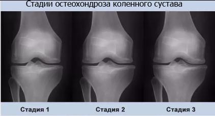 Остеохондроз коленного сустава: симптомы и лечение