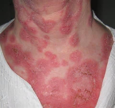 Причины, симптомы и лечение эритемы