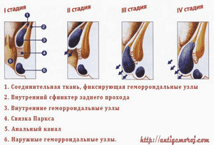 Как лечить геморроидальный узел?