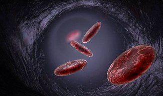 Развитие апластической анемии: почему и что делать?