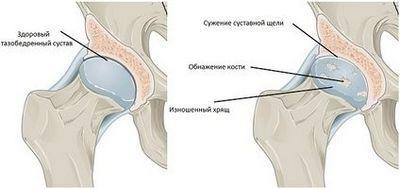 Эффективность лечения суставов с помощью топинамбура