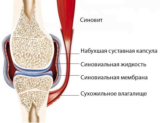 Синовит: подробно о видах и характерных симптомах