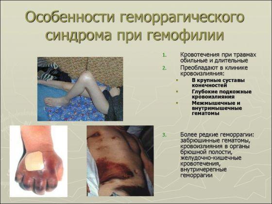 Процесс свёртывания крови и его нарушения