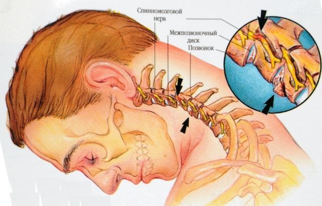 Мануальная терапия позвоночника - полное описание процедуры