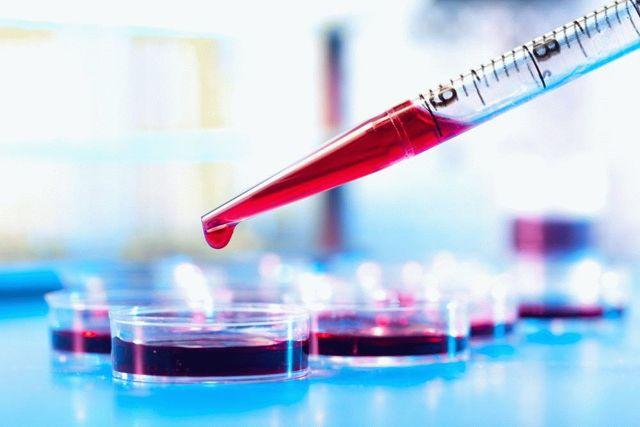 Эозинофильный (диффузный) фасциит: фото и лечение