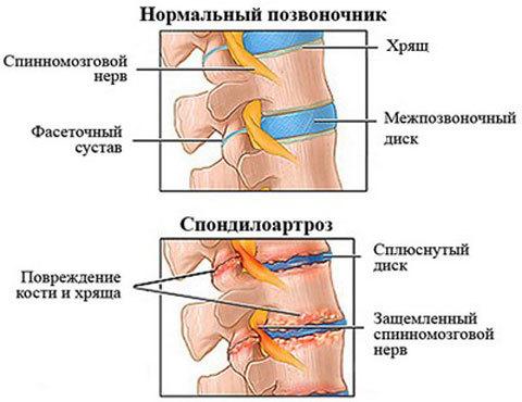 Деформирующий спондилоартроз поясничного отдела - лечение заболевания