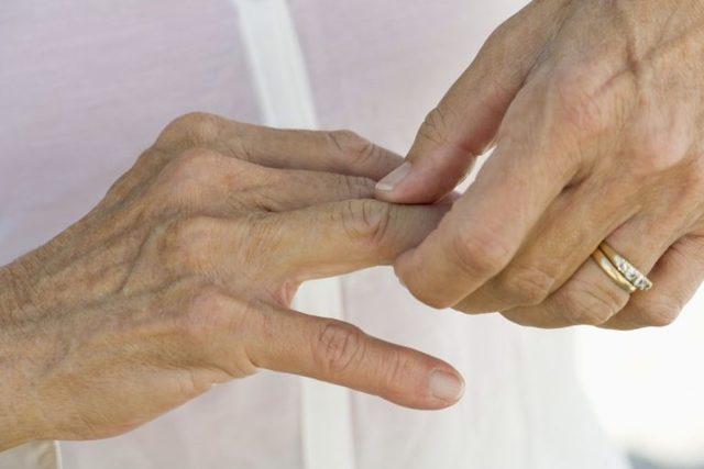 Ревматоидный артрит: лечение народными средствами в домашних условиях