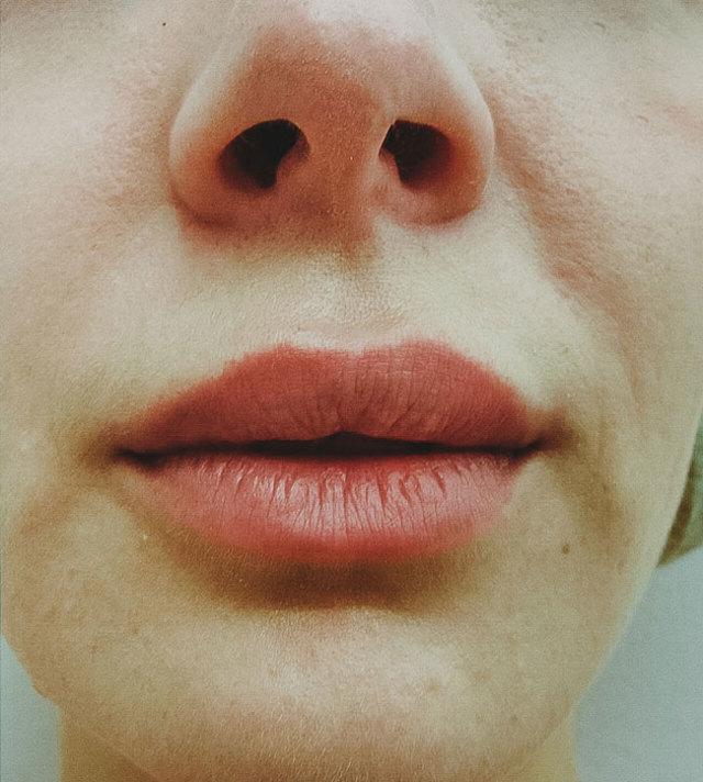 Синяк на губе: причины, первая помощь, лечение