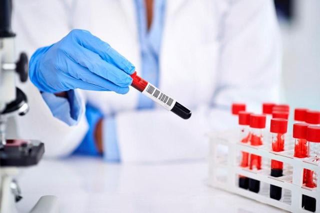 Особенности пернициозной анемии