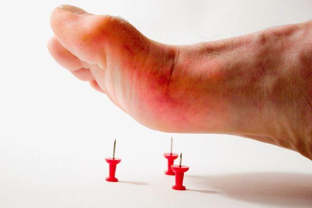 Что такое подагра: как возникает и протекает болезнь