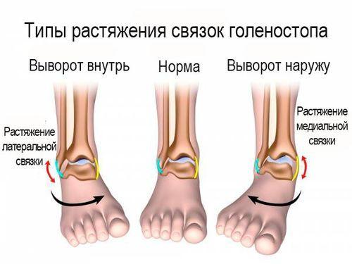 Растяжение мышц на ноге: причины, симптомы, лечение