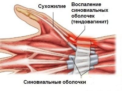 Тендовагинит лучезапястного сустава: причины, симптомы, виды и лечение