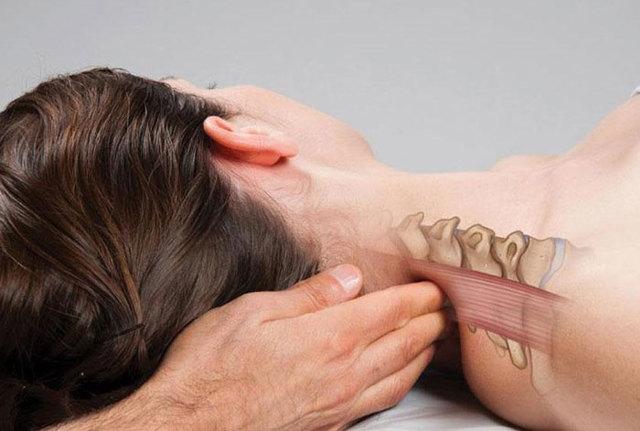 Шейный радикулит: симптомы и лечение