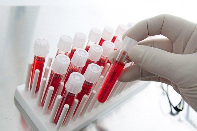 Что означает повышение или понижение уровня триглицеридов в крови?