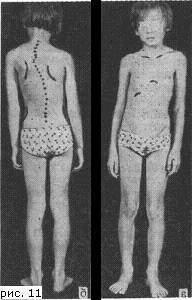 Диспластический сколиоз: причины, лечение, степени и профилактика