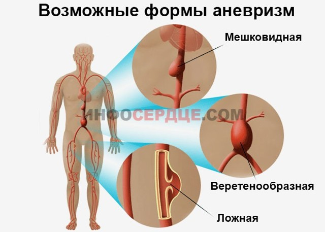 Причины, лечение и последствия уплотнения аорты