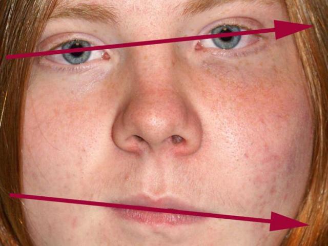 Фиброзная дисплазия — причины, симптомы и лечение
