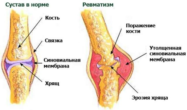 Ревматизм суставов: причины, симптомы и лечение