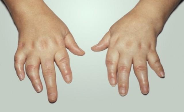 Дактилит пальцев: причины, симптомы и лечение