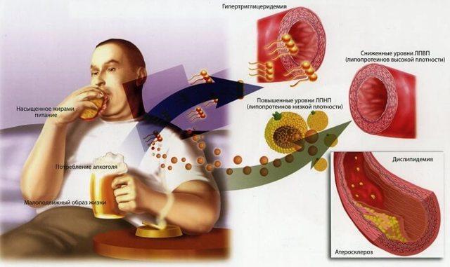 Немеет мизинец: причины, диагностика и лечение