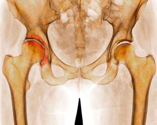 Остеохондроз тазобедренного сустава: симптомы и лечение