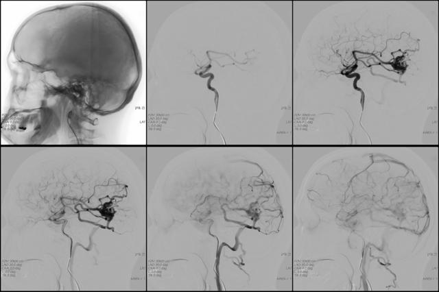 Классификация, симптомы и лечение ангиомы мозга