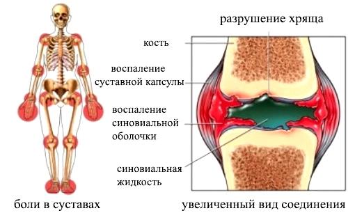 Полиартрит плечевого сустава: симптомы и лечение