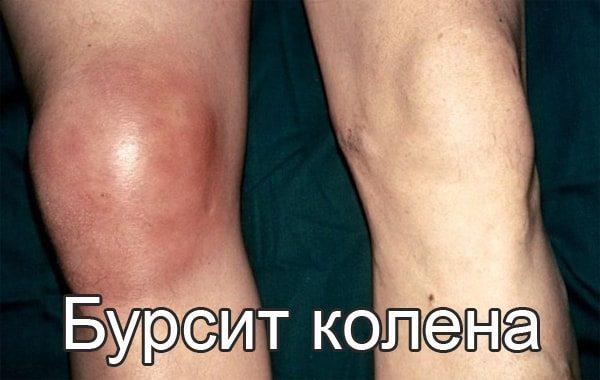 cупрапателлярный бурсит коленного сустава - лечение и симптомы