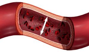 Что такое гипертензия и как ее лечить?