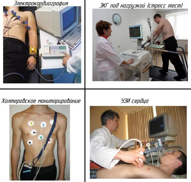 Причины и возможные осложнения наджелудочковой экстрасистолии
