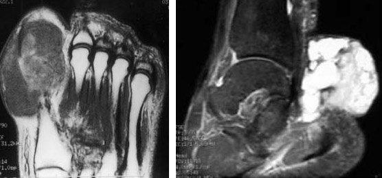 Саркома бедра: причины, симптомы и способы лечения