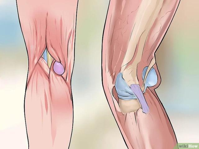 Киста Бейкера коленного сустава: причины, симптомы и лечение