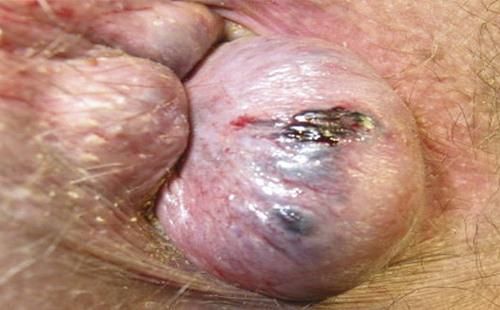Особенности лечения наружного и внутреннего тромбированного геморроя