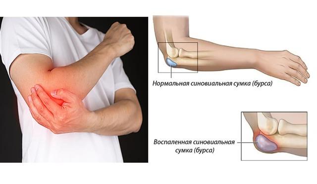 Бурсит локтевого сустава: симптомы и лечение, фото