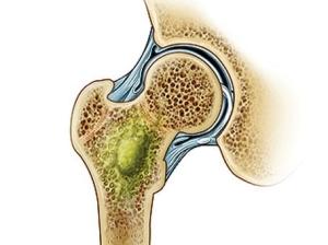 Лечение остеомиелита народными средствами — эффективные методы
