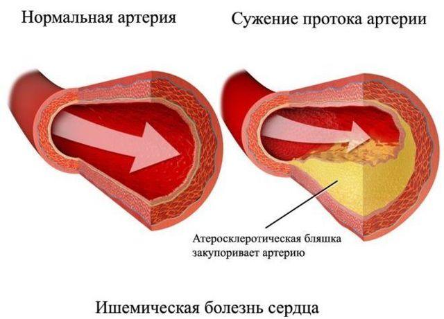Разновидности и лечение сердечной недостаточности